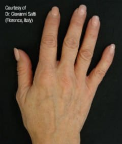 Before & After Gallery | Hands