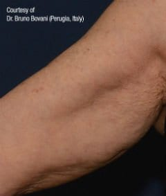 Profhilo Before & After | Inner Arms