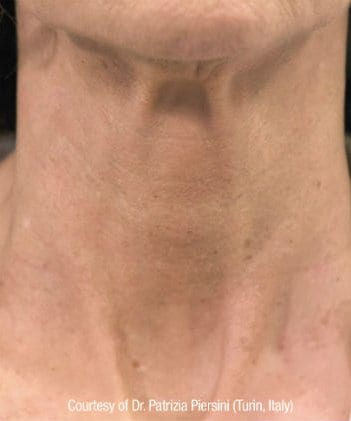 Before and After Gallery | Neck