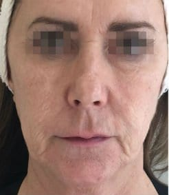 Before & After Gallery | Face