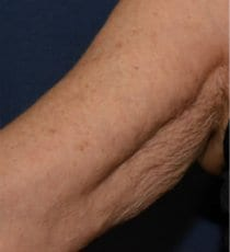 Profhilo Before & After Gallery | Inner Arms
