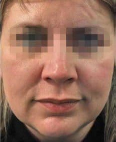 Profhilo Before & After Gallery | Face