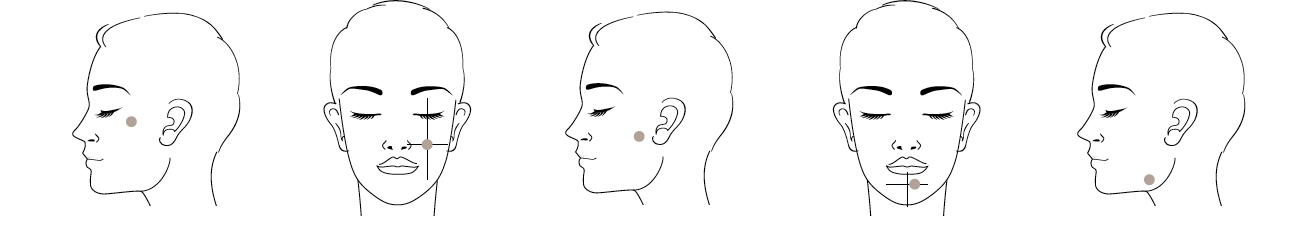 Injectables hyaluronic acid technique